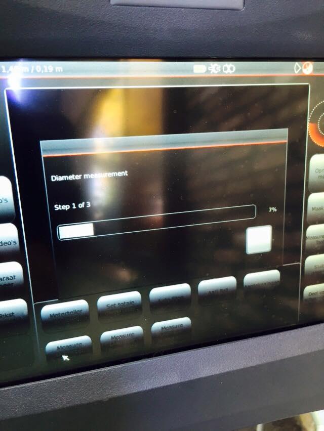 daiametermeting laserdioden Pipe Vision Agilios